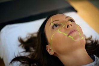 Tratamiento Laser CO2
