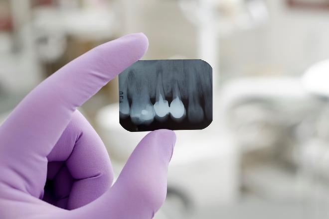 radiografías dentales, radiografías de los dientes