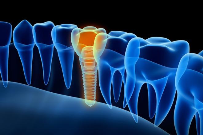 implantología, qué es la implantología