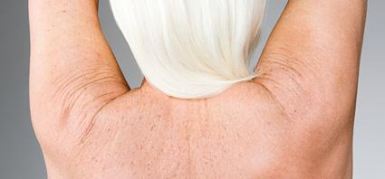 La crema activa de la pigmentación