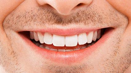 blanqueamiento dental férulas