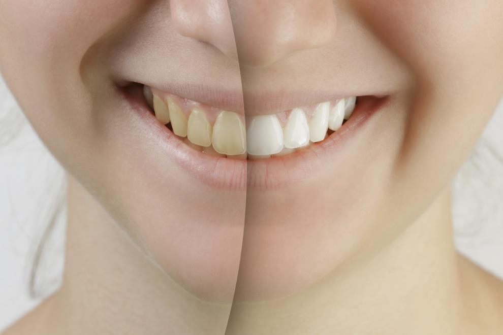 blanqueamiento dental por fotoactivación