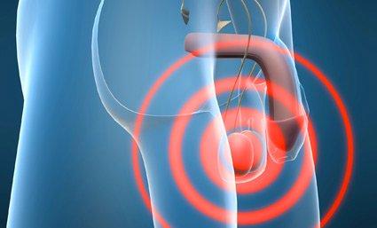 cáncer testicular preservar la fertilidad