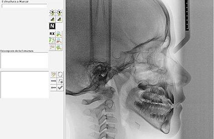 cefalometría odontología ortodoncia