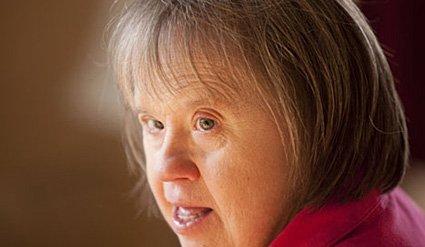 demencia asociada síndrome de down