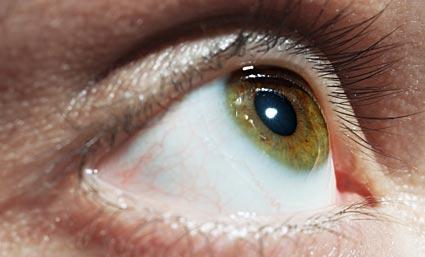 Preguntas Mas Frecuentes Sobre El Desprendimiento De Retina