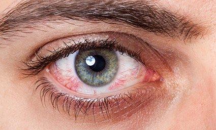 enfermedades de la córnea