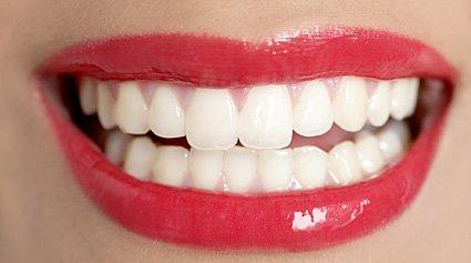 materiales estética dental
