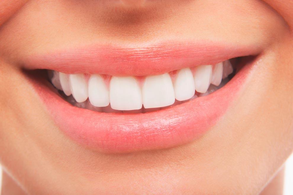cuidar férulas después ortodoncia