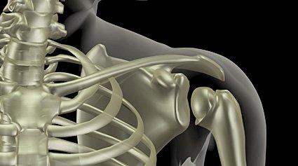 Bubnovsky el ejercicio a la osteocondrosis