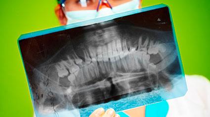 fractura del maxilar