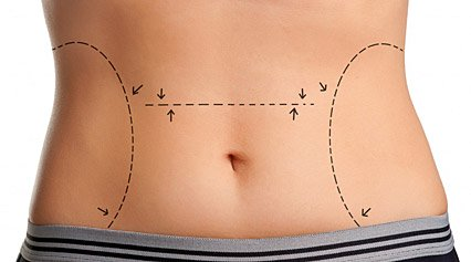 diferencias entre liposucción y lipoescultura
