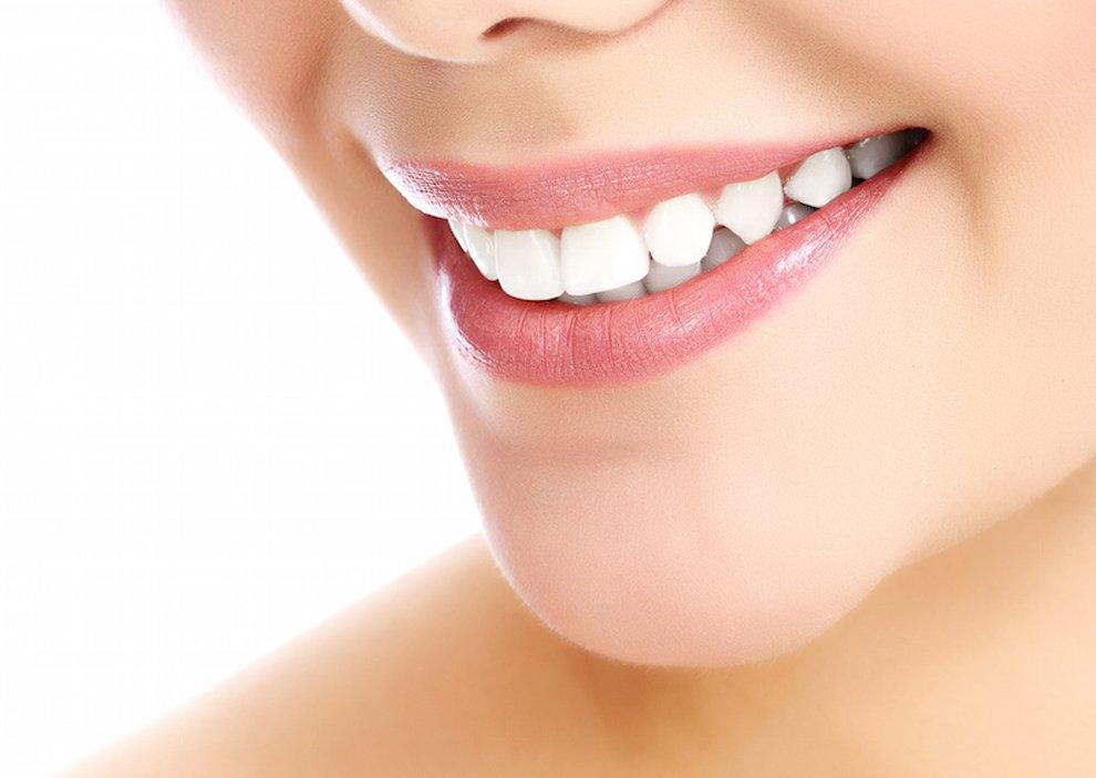 blanqueamiento dental cómo se hace, blanqueamiento dental procedimiento