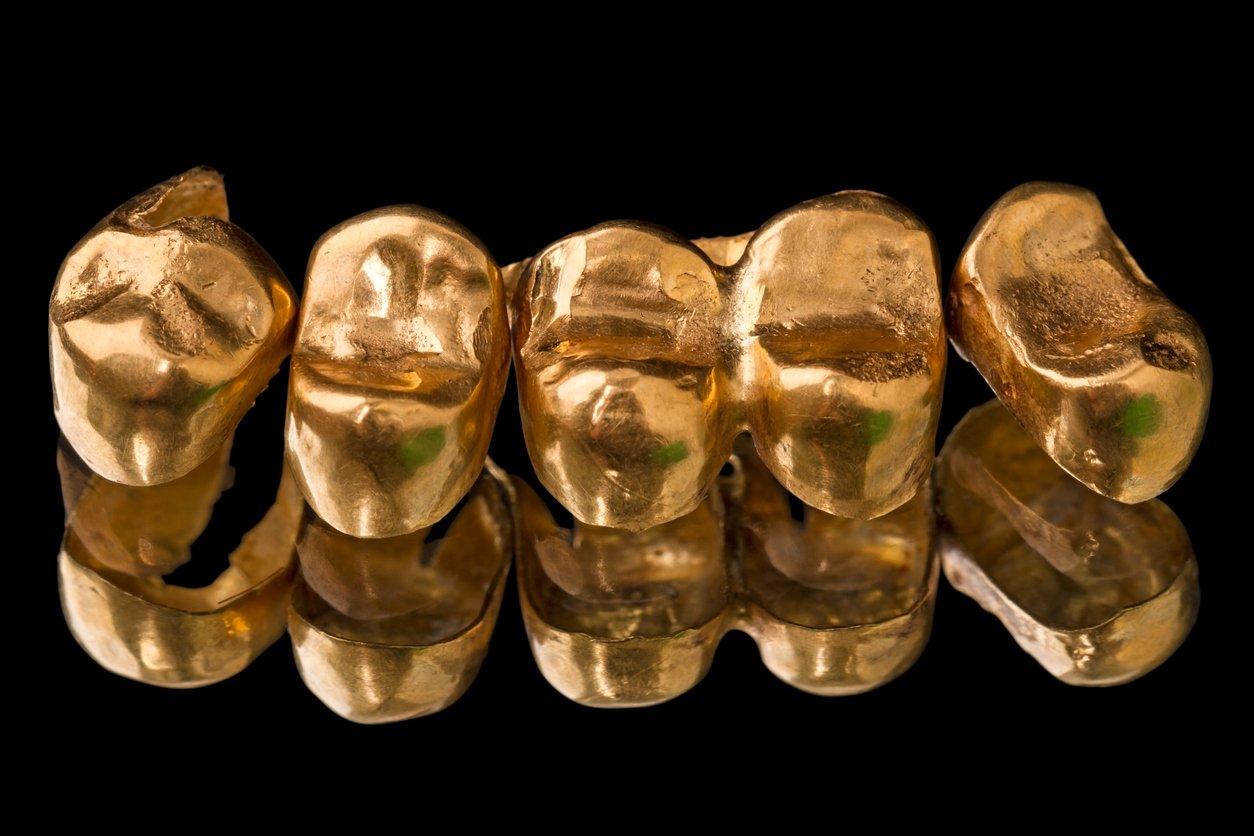 dientes de oro, diente de oro