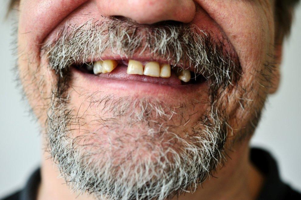 pérdida de dientes, perder los dientes