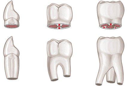 Qué tipos de dientes hay?
