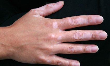vitíligo enfermedad piel
