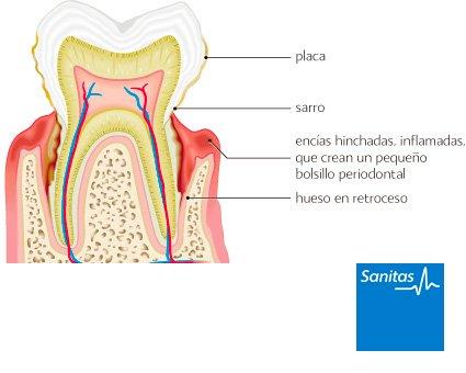 gingivectomía enfermedad gingival