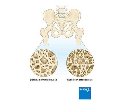 osteoporosis enfermedad huesos