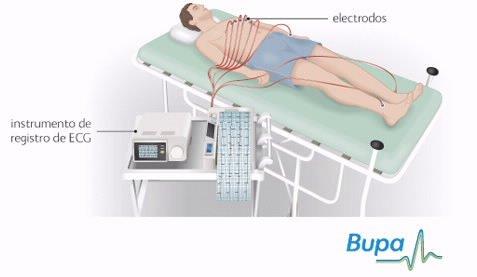 Foto: Representación de la prueba de electrocardiograma