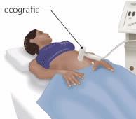 ecografia ginecologica