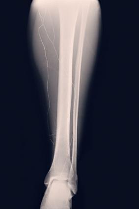 Imagen lesiones lesOsea estres tibia