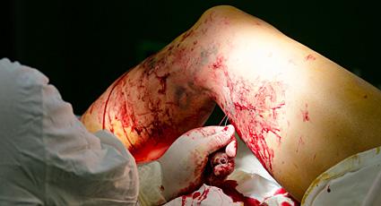 Si es nocivo a la ampliación varicosa