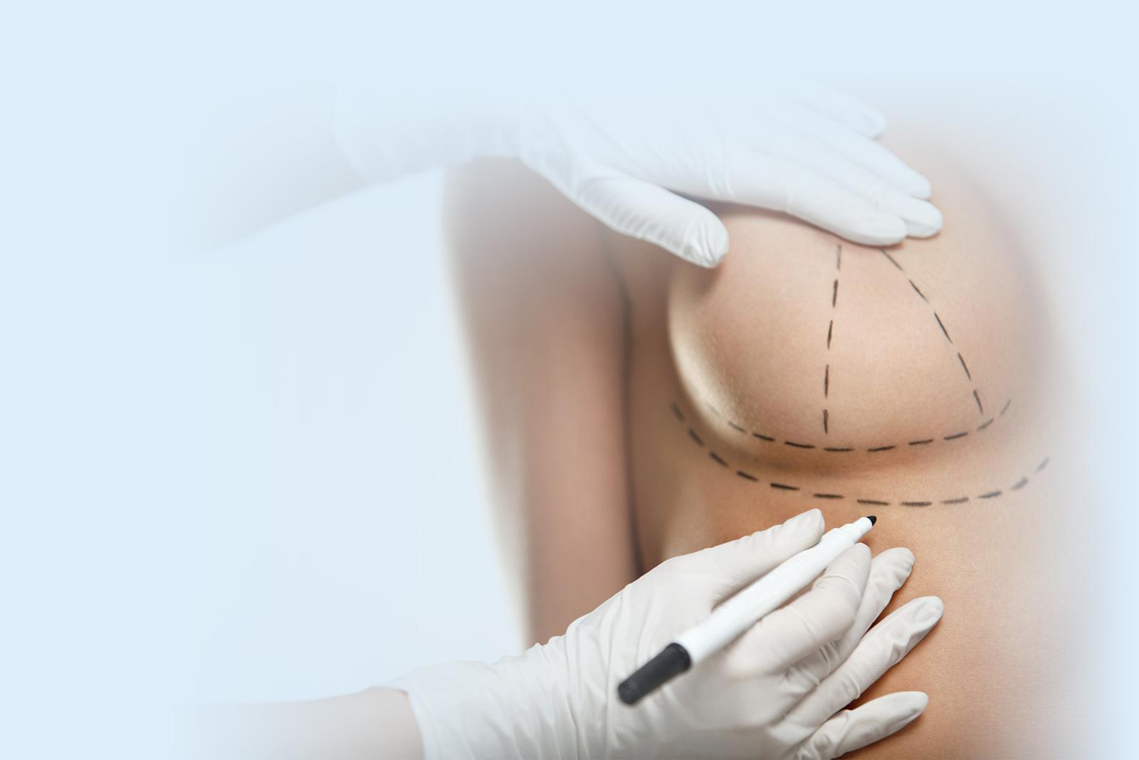 Elevacion de mamas